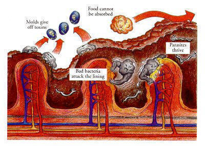 Cross section of intestinal wall, bowel cleanse, dirty sick bowel before bowel cleanse, bentonite,psyllium